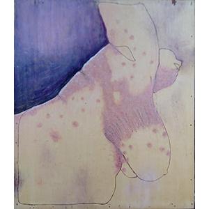 Das Bild zeigt einen vorgebeugten Oberkörper seitlich von unten. Auf der Haut ist in großflächiger Ausschlag.
